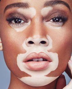 Different is beautiful | Cushnie et Ochs Skinspiration