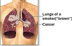 Lung Cancer Symptoms - Bing Images
