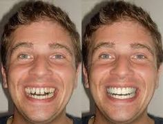 Smile Design is the procedure involving the reshaping and building of teeth to enhance a beautiful and sparkling smile. Cosmozone, Greater Noida is the best place in India for Smile Dentistry with affordable cost.