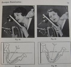 vintage radiography xray dental. We definately have it easy today!