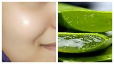 Five minutes face masks with patanjali aloe vera gel.