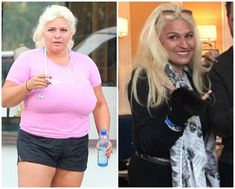 Beth Chapman Diet Tummy Tuck And Breast Reduction Surgery Beth