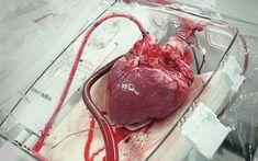 Nova técnica que ressuscita o órgão depois que ele parou de bater deve aumentar número de transplantes cardíacos em até 30%