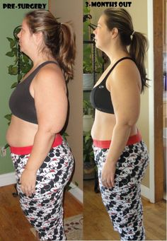 90-day results after bariatric surgery. This surgery can be life changing!