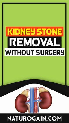 Kid Clear capsules dissolve kidney stones fast without surgery naturally at home. These pills treat frequent infections and also prevent other issues such as burning while passing urine, abdominal pain, and reduced urine output. #kidneystones #kidneystone #kidneyhealth Improve Kidney Function, Kidney Health, Kidney Stones, Healthy Tips, Surgery, Herbalism, Pure Products, Herbal Medicine