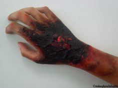3rd Degree Burn. Special FX Makeup by Rachel Sophie