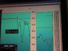 Tradingpuramentegrafico: #trading #FIB risultato -105-15= -120#trading eur/...