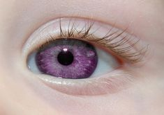Albino People with Purple Eyes | ... and violet eyes that change shades, or colors, according to her mood