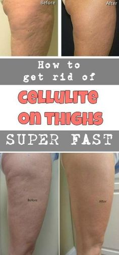 How to get rid of cellulite on buttocks and thighs fast? 6 Exercise, 14 day challenge Cellulite workout at home. workout routine to get rid of cellulite and get firm legs, and smooth thighs. Best exercise to get rid cellulite on butt and thigh. Thigh Cellulite, Cellulite Wrap, Causes Of Cellulite, Cellulite Exercises, Cellulite Remedies, Reduce Cellulite, Anti Cellulite, Cellulite Workout, Cellulite Scrub