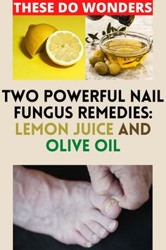 When you have a nail fungus, looking for a natural nail fungus cure is usually the best option before going for expensive treatments that may have side effects. That's why we recommend trying out this lemon juice and olive oil remedy first! Toenail Fungus Home Remedies, Toe Nails, Fungi, You Nailed It, The Cure, Treats, Fruit, Side Effects, Olive Oil