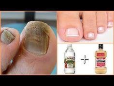 Best 7 Mega Recipe You get rid of the nail fungus – SkillOfKing. Beauty Care, Diy Beauty, Beauty Skin, Health And Beauty, Beauty Hacks, Toe Fungus Remedies, Nail Fungus Removal, Fungal Nail, Ingrown Toe Nail