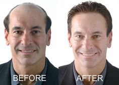 Before and After Hair Replacement System -- To view further for this item, visit the image link.