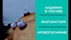 Хиджама в Москве. Акупунктура. Кровопускание