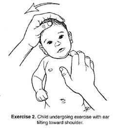 Explanation of therapeutic activities often utilized when treating babies for Torticollis