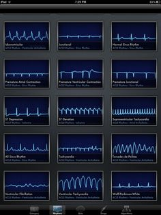 ACLS Rhythms Cheat Sheet | Welcome, Guest | Login | Register | Forgot Password |: