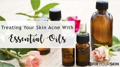 Essential oils can gift your skin the much-needed radiance. But, people who are prone to acne should carefully select the best essential oils for acne prone skin. The best essential oils for skin will remove the excess sebum and reduce the redness and swelling that comes with this unpleasant skin condition called acne.Although it affects …