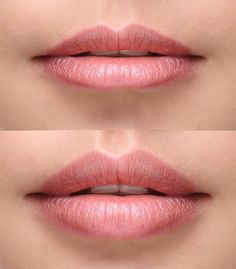 Juvederm Volbella for lip plumping and diminishing the fine lines above the lip. Volbella is recommended for contouring, symmetry and diminishing lines caused by aging.