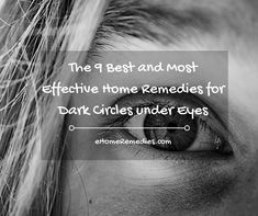 The 9 Best and Most Effective Home Remedies for Dark Circles under Eyes