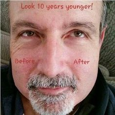 "HOT HOT HOT - You have to watch this video of Instantly Ageless in 2 minutes. If you have wrinkles, bags under your eye, this is the product. See video here… ""Men are increasingly image-conscious globally. It is becoming increasingly acceptable for men to care about their looks—vanity is no longer women's prerogative and has not been so for a while now. Companies such as Jeunesse are recognizing this need and provide products targeted at men."" #Jeunesse #InstantlyAgeless #Free #Samples"