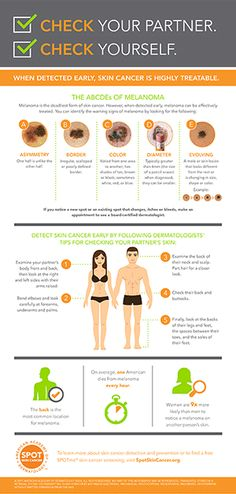 Need something to do with your partner this weekend? Check one another's skin! Here's a handy infographic from the American Academy of Dermatology that explains what to look for and how. Skin Cancer Treatment, Skin Care Regimen, Cancer Awareness, Healthy Skin, Health And Wellness, Infographic, Check, American, Public