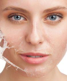 """A descamação é um problema que costuma atingir as peles secas. Isso porque elas são mais suscetíveis a males como o ressecamento que, em seu grau máximo, causa esse tipo de fenômeno. Além de ser bastante incômoda, a descamação afeta a aparência da pele, que começa a """"descolar"""" e ganha pequenas fissuras por toda a …"""