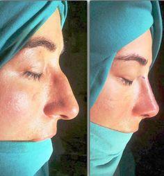 Aurikulotherapie zum Abnehmen vor und nach der Nasenkorrektur