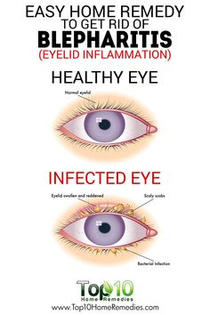 Easy Home Remedy to Get Rid of Blepharitis (Eyelid Inflammation)
