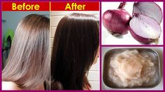 Turn Your Grey White Hair to Black Naturally | Magical Remedy for White Hair 100% Works