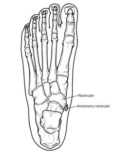 The accessory navicular (os navicularum or os tibiale externum) is an extra bone or piece of cartilage located on the inner side of the foot just above the arch. It is incorporated within the posterior tibial tendon, which has its insertion to the bone in this area. An accessory navicular is congenital (present at birth). It is not part of normal bone structure and therefore is not present in most people.