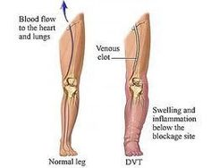 How To Tell If You Have A Blood Clot