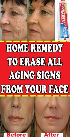 Remedy To Erase All Aging Signs From Your Face – Care – Skin care , beauty ideas and skin care tips Natural Remedies For Allergies, Natural Remedies For Anxiety, Beauty Tips For Hair, Beauty Hacks, Beauty Ideas, Beauty Care, Beauty Secrets, Diy Beauty, Beauty Skin