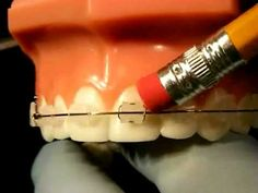Braces Problems: Pain, Poking Wire, Sore Teeth, loose bracket... A video by bracesquestions.com that explains what to do in different situations. Always call our office if you have questions or something is wrong with your appliance. We will make sure your next appointment has enough time scheduled to help you! www.robinson-ries.com