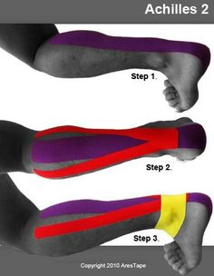 kt tape achilles tendonitis - Google Search