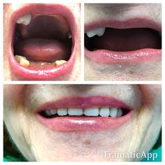 #dentist #prosthetic #dentistry #dentista #врачи #улыбайся #зубы #smile #dentures #denture #crown #буднистоматолога #ортопедическаястоматология #стоматология #протезирование #протезы #коронки #имплантация by swetlana_wolkowa Our Dentures Page: http://www.myimagedental.com/services/general-dentistry/dentures/ Other General Dentistry services we offer: http://www.myimagedental.com/services/general-dentistry/ Google My Business: https://plus.google.com/ImageDentalStockton/about Our Yelp Page…