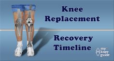 Learn about the typical post-operative course (timeline) following total knee replacement. Find out how to make homemade ice packs. Connect with others...