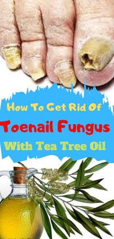 Does Tea Tree Oil Work for Nail Fungus? Click Here to Discover how long does it take for tea tree oil to work on toenail fungus.. #TeaTreeOil ##TeaTreeOilUses #teatreeoilbenefits #teatreeoilfortoenailfungus #toenailfungus #teatreeoilfortoenailfungusdroz #naturalremediesfortoenailfungus #naturalremedies Tea Tree Oil Uses, Tea Tree Oil For Acne, Home Remedies Beauty, Home Remedies For Skin, Tee Tree Oil, Yeast Infection Home Remedy, Toenail Fungus Remedies, Toe Fungus, Nail Oil