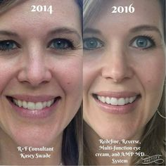 It really is amazing what R+F can do for your skin! Check out Kasey's results.... Get free advice here https://iarman.myrandf.com/Pages/OurProducts/GetAdvice/SolutionsTool