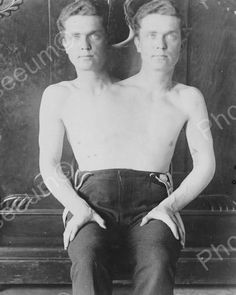 Conjoined Two Headed Man 1901 8x10 Reprint Of Old Photo