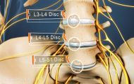 The L4-L5 segment of the spine is a very common source of back pain or sciatica. Damage to the L4-L5 disc or related spinal joints can cause pain.