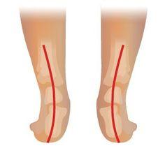 De oorzaak van hielspoor is voornamelijk het overbelasten van de voet. Echter kan ook overgewicht een oorzaak zijn. Lees snel verder hoe dit te behandelen!