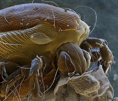 有些生物還是不要用顯微鏡看比較好...好恐怖阿~