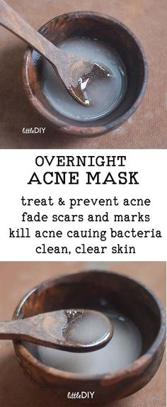 Acne is a very common skin problem and can leave behind dark spots, marks and sc., Beauty, Acne is a very common skin problem and can leave behind dark spots, marks and scars. Acne is best treated with an overnight treatment and you get a lo. Aloe Vera Creme, Pimples Overnight, Overnight Acne Remedies, Clear Acne Overnight, Overnight Acne Treatment, Overnight Mask, Natural Acne Treatment, Acne Treatments, Tips