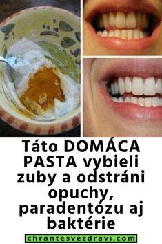 Táto DOMÁCA PASTA vybieli zuby a odstráni opuchy, paradentózu aj baktérie Healthy Tips, Pasta, Pasta Recipes, Pasta Dishes