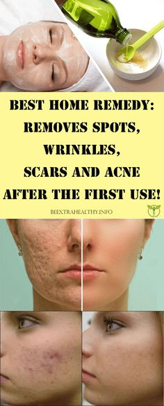 Best Home Remedy: Removes Spots, Wrinkles, Scars and Acne After The First Use!