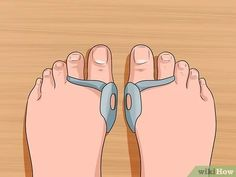 How to Get Rid of Bunions. A bunion is a bony lump that forms at the base joint in the big toe. Bunions form when tight or high-heeled shoes, an injury, or a person's inherited bone structure result in the big toe being pushed toward the. Health Remedies, Home Remedies, Natural Remedies, Bunion Exercises, Bunion Remedies, Get Rid Of Bunions, Bunion Pads, Warts On Hands, Foot Pain