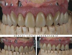 Ceroplastia dental. #dentalopez