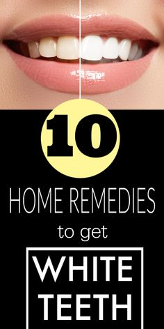 10 Home remedies to whiten your teeth instantly at home Teeth Whitening Bleach, Get Whiter Teeth, How To Remove, How To Get, Teeth Care, Natural Skin Care, Natural Beauty, White Teeth, Oral Health