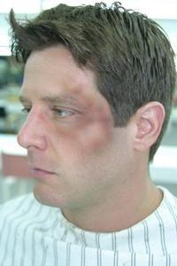 makeup fx: bruises and scrapes