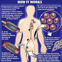 Stem Cell Therapy In The Treatment Of Heart Failure Ischemic Heart Disease, Vascular Disease, Heart Failure Treatment, What Is Stem, Cord Blood Banking, Hormone Replacement Therapy, Stem Cell Therapy, Medical Information, Stem Cells