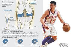 Meniscus tears affect everyone from couch potatoes to Jeremy Lin and often go unnoticed. http://on.wsj.com/HQTAsr See a physical therapist!